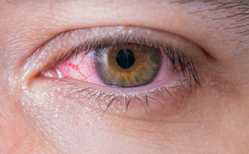 7 Penyebab Mata Merah yang Jarang Diketahui